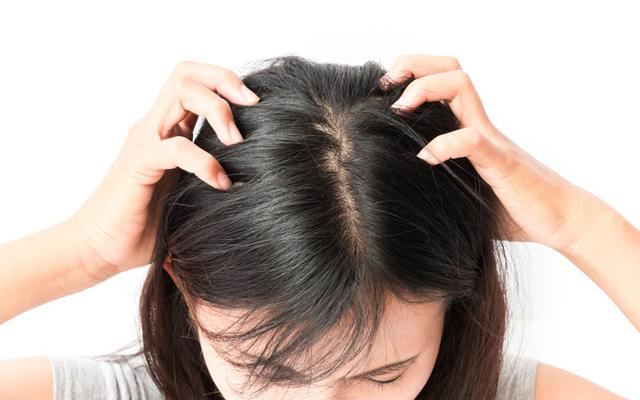 How to Get Rid of Head Lice the First Time?
